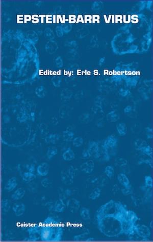 Epstein-Barr Virus book