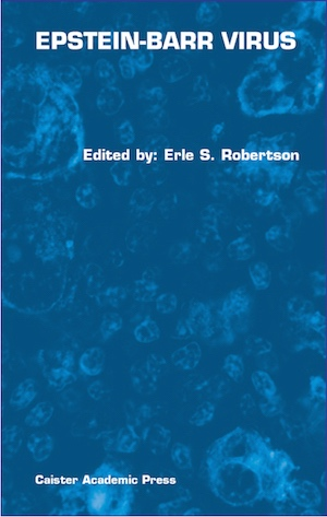 Epstein-Barr Virus book
