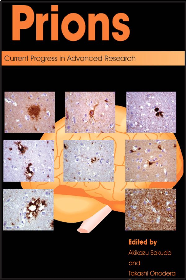 Prions: Current Progress in Advanced Research