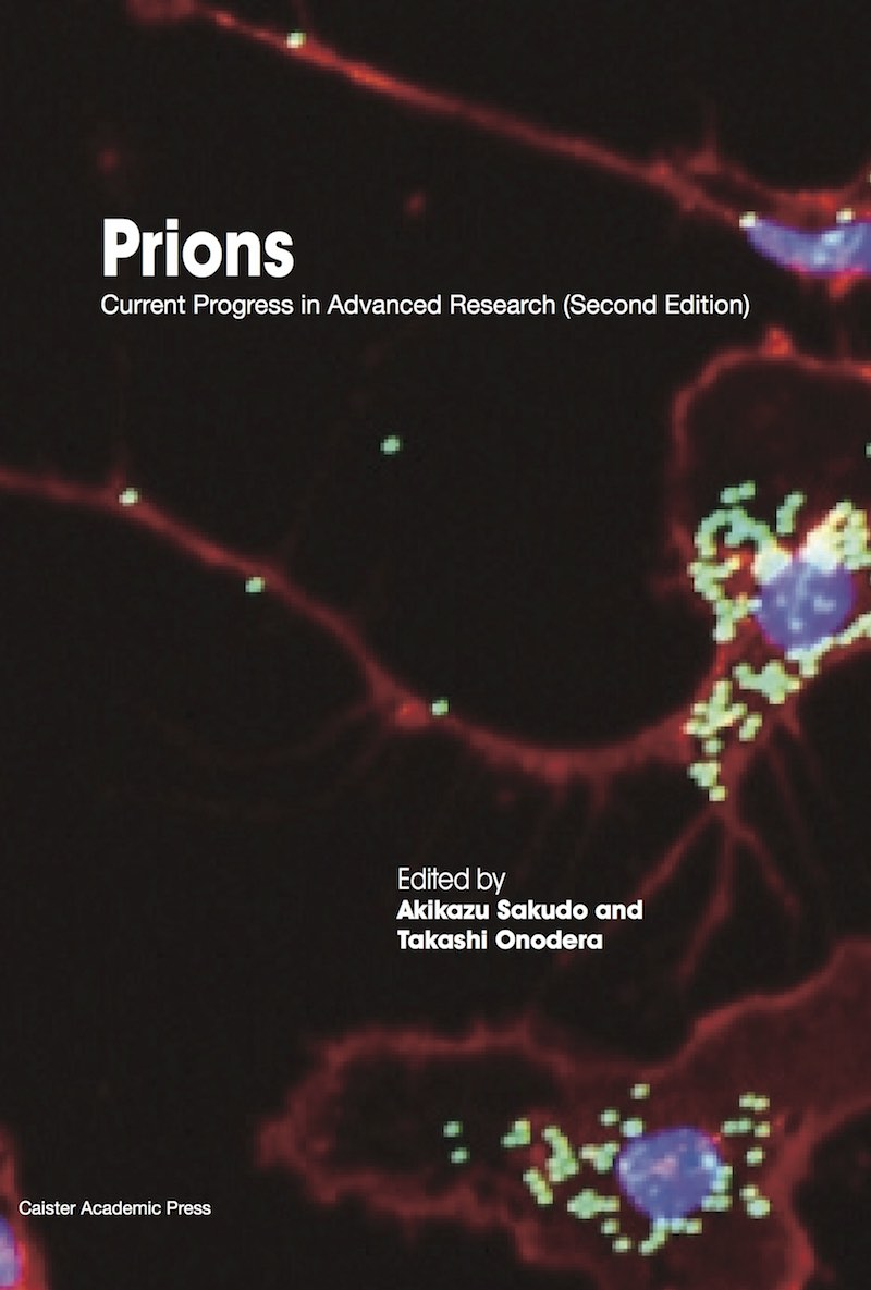 Prions: Current Progress in Advanced Research (Second Edition)